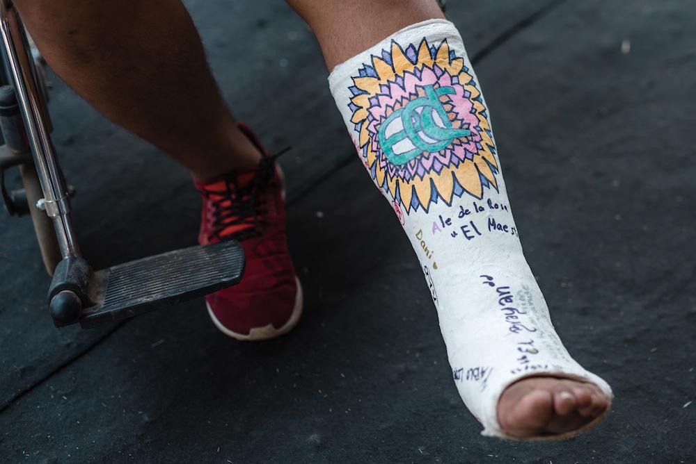 thebestofedcmexico2017_broken-foot_1000x667_WEB-JO
